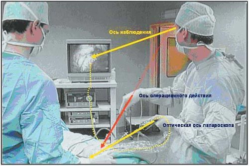 Рис. 17. Видеолапароскопическая операция. Соотношение осей наблюдения и операционного действия для хирурга