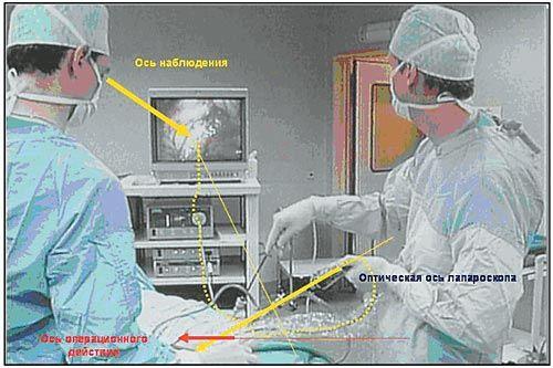 Рис. 18. Видеолапароскопическая операция. Соотношения осей наблюдения и операционного действия для ассистента
