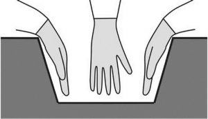 Рис. 1. Традиционный доступ из большого разреза обеспечивает наибольшую свободу для действий рук хирурга в ране