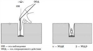 Рис. 22. Глубокий колодцеобразный доступ и традиционная техника оперирования