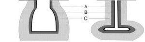 Рис. 4. Зоны хирургического повреждения