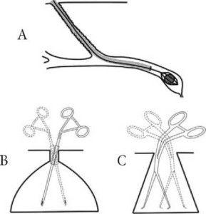 А — катетерный тип В — троакарный вид. С — традиционный тип Рис. 5. Основные типы инструментов для минимально инвазивных операций