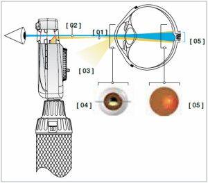 прямой офтальмоскоп pic1